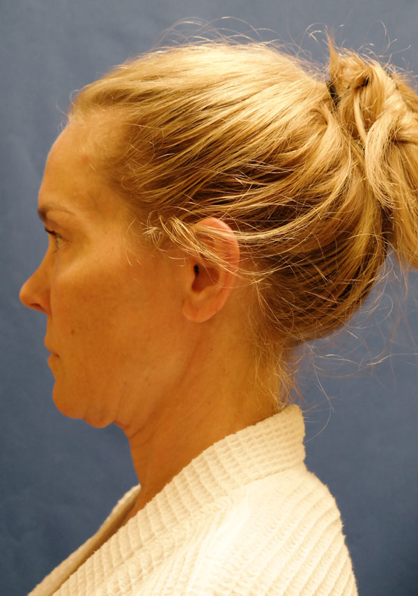 shewmake-side-facelift-before.jpg