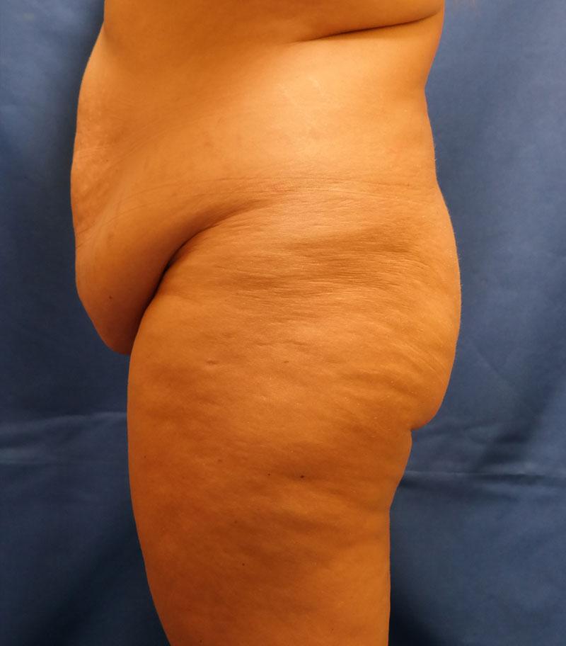 Shewmake-tummy-tuck2-before.jpg