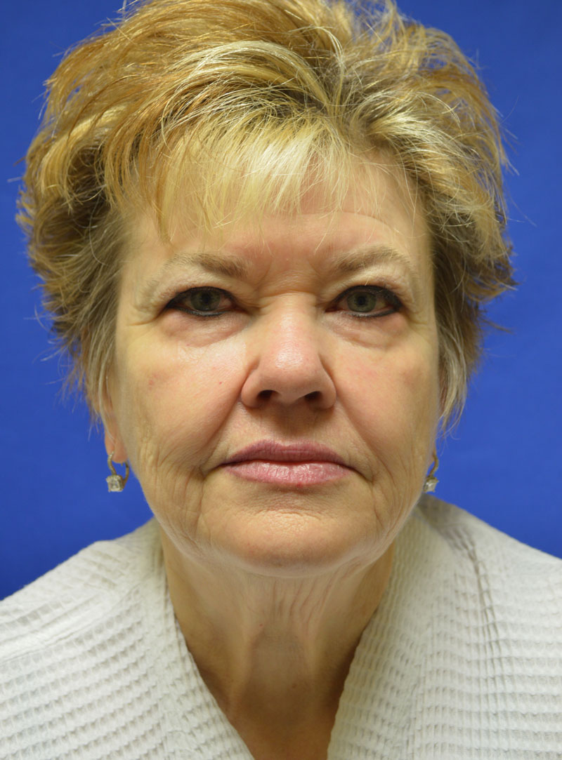shewmake-facelift-before.jpg