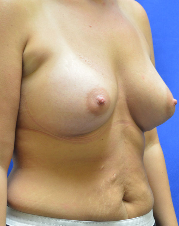shewmake-sidebreast-after.jpg