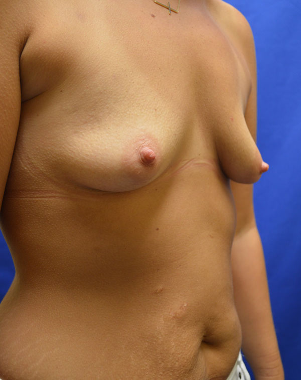 shewmake-sidebreast-before.jpg