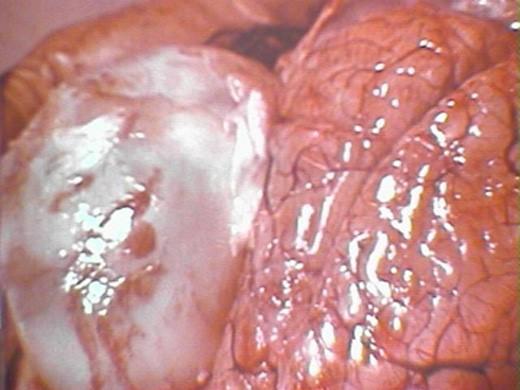 Human Brain with Hydatid Cyst