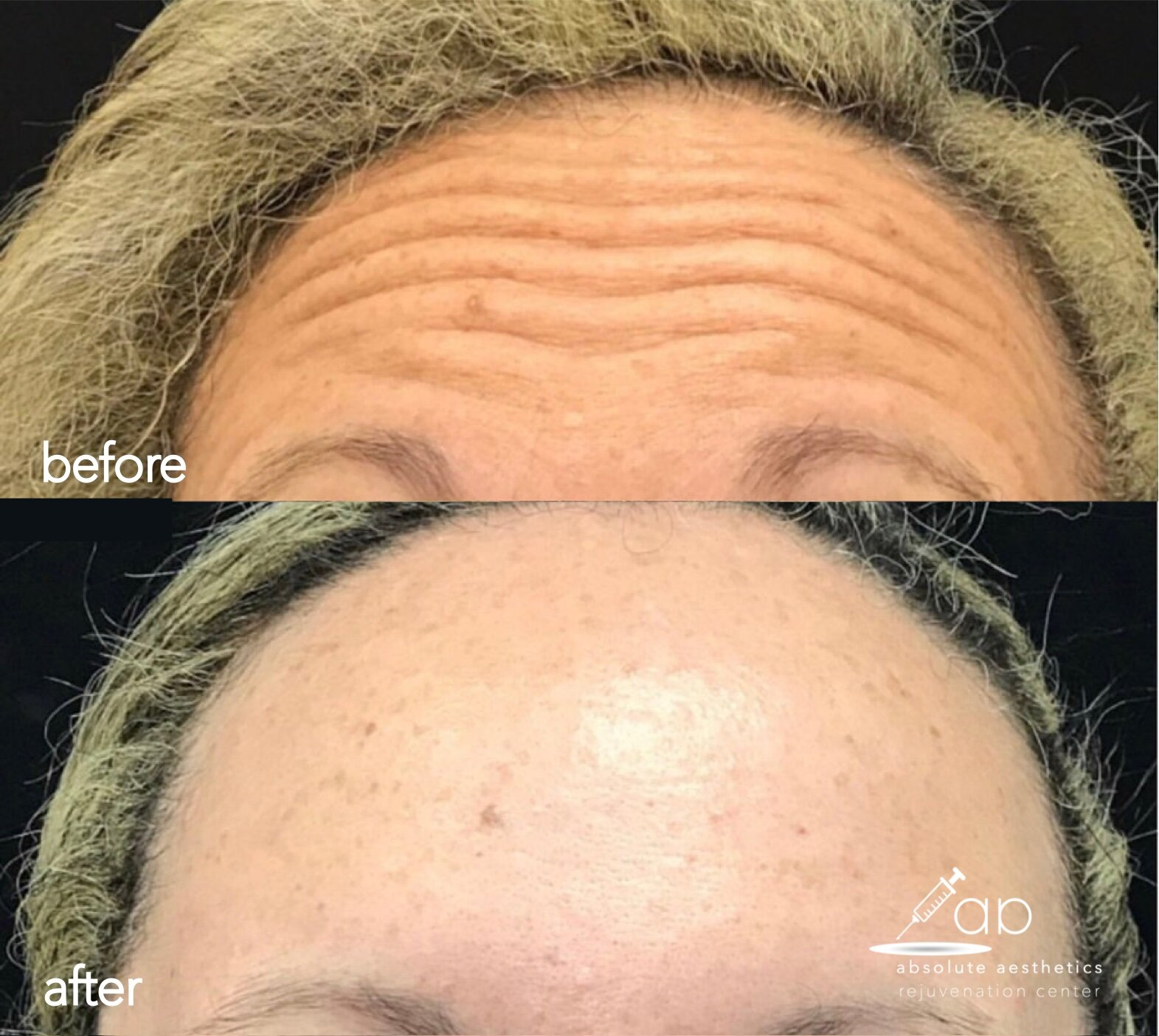 Botox, Dysport, Wrinkle Relaxers, Before and After, Results, Plantation