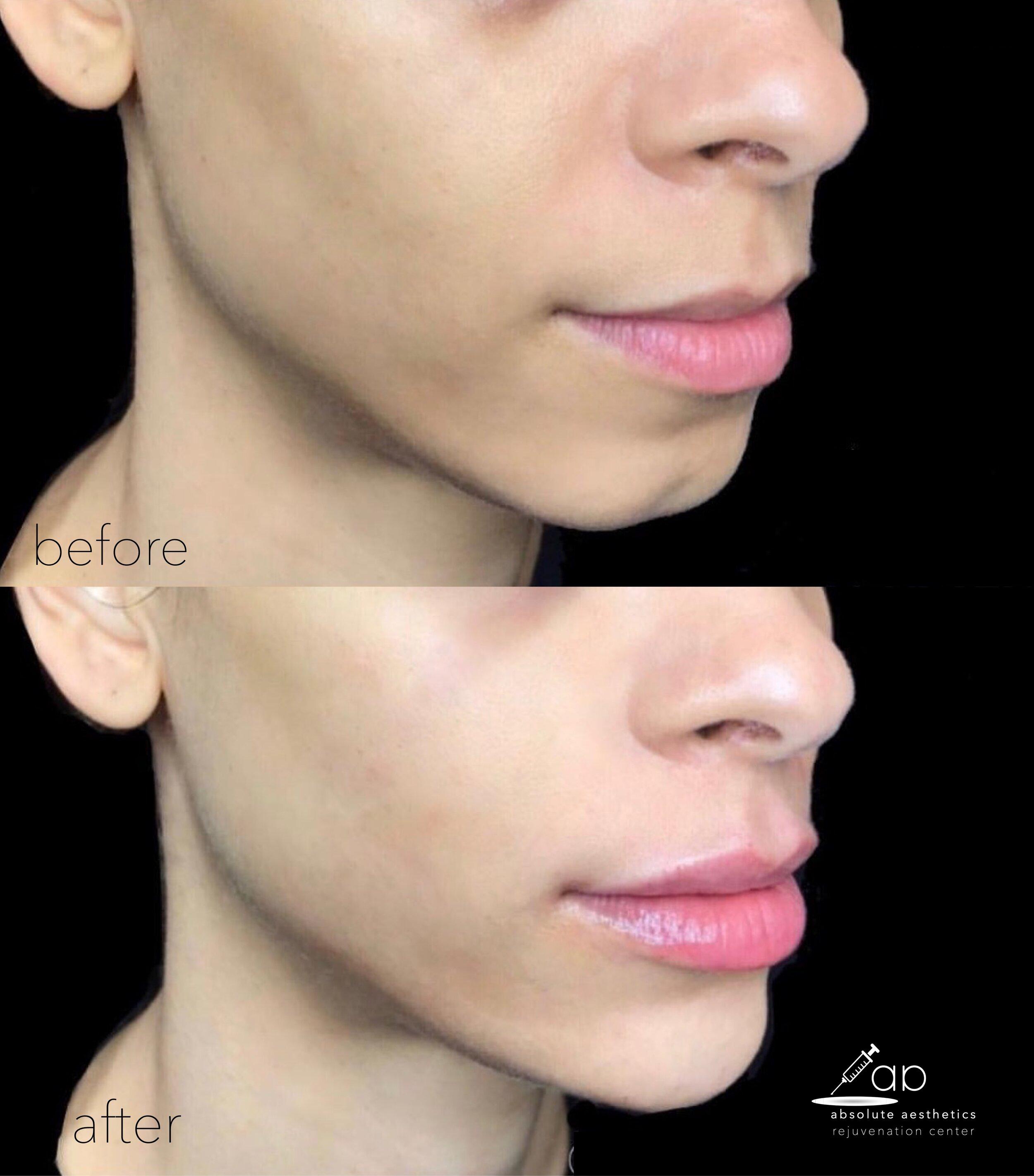 Chin and Lip Augmentation