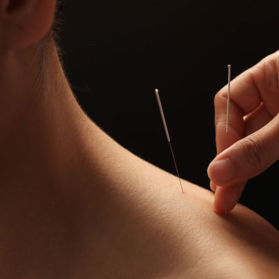 APG-acupuncture-sarasota-how.jpg