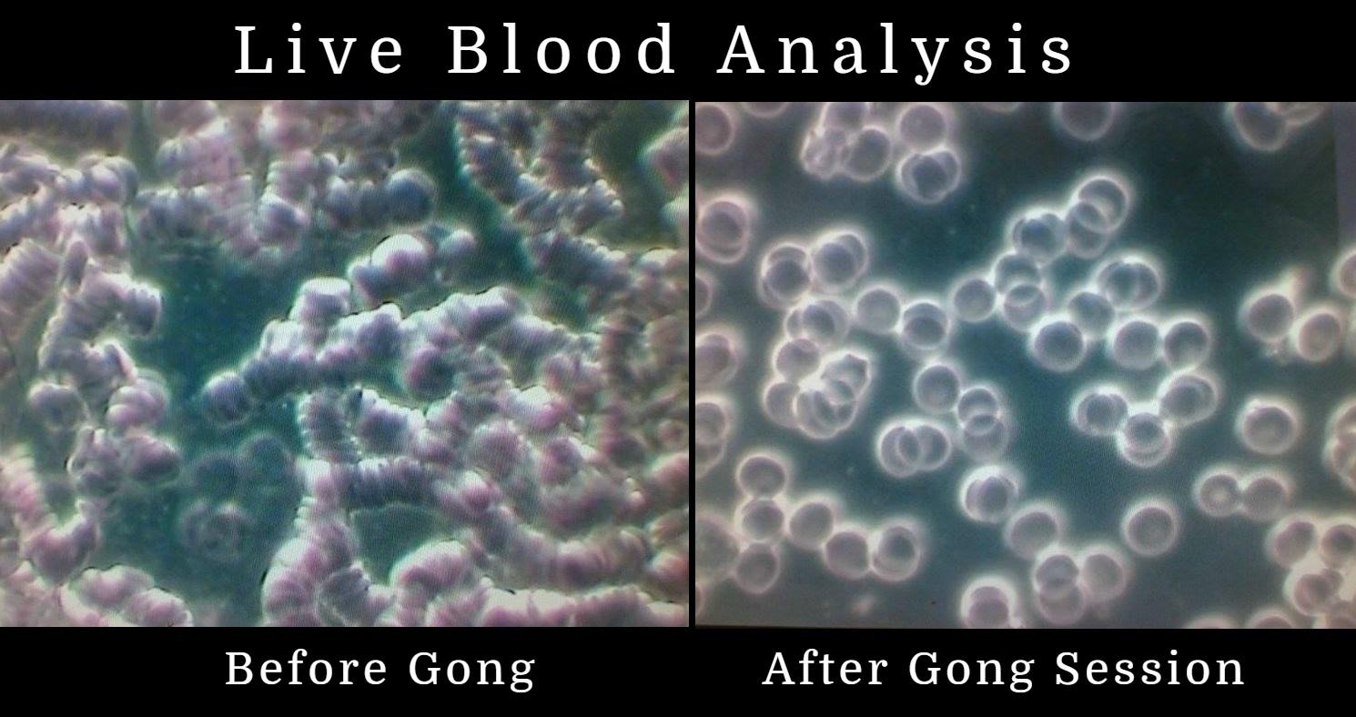 live blood.jpg