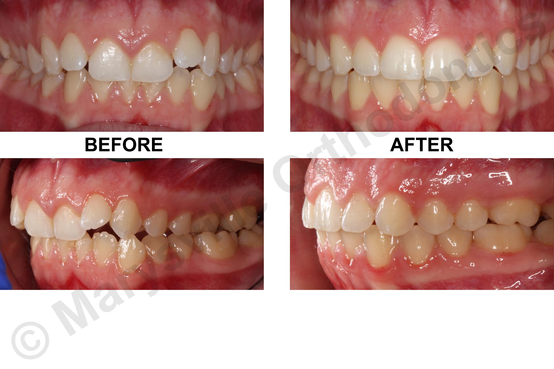 ASYMMETRY, CROWDING, POSTERIOR CROSSBITE AND GUMMY SMILE