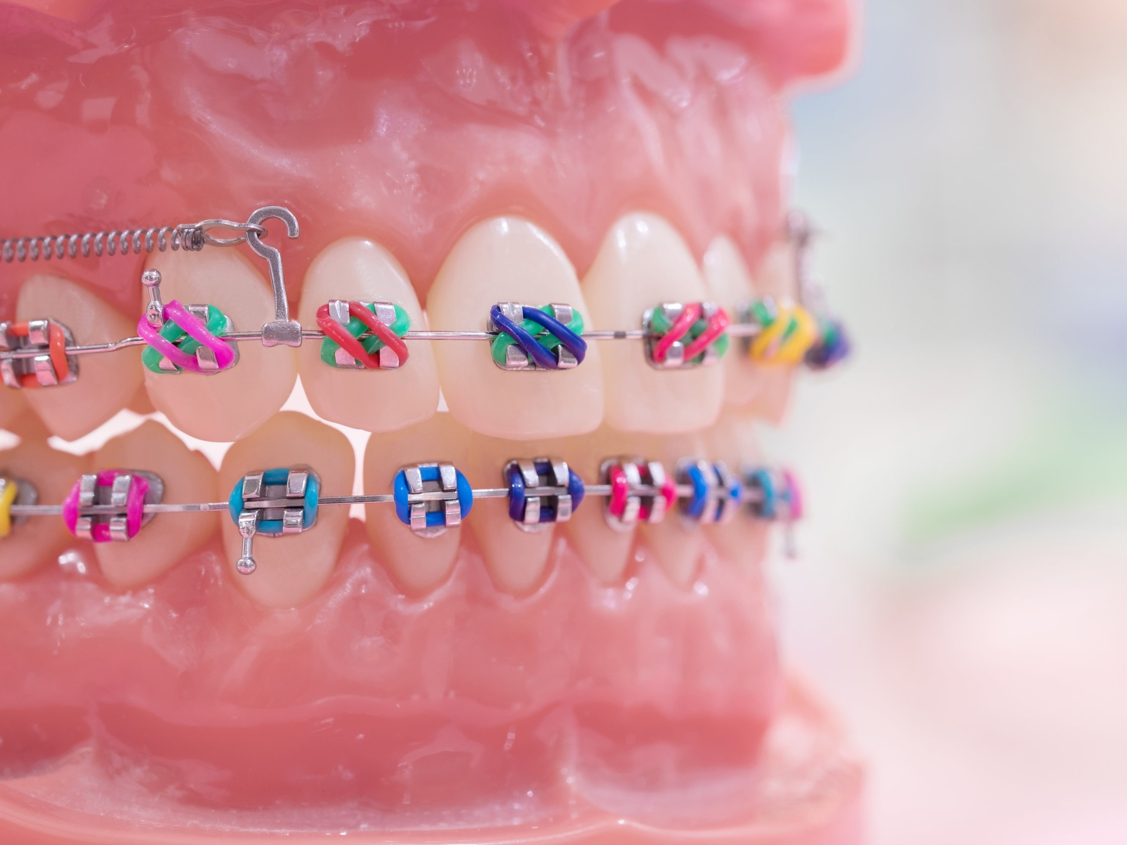Traditional Metal Braces with color ties