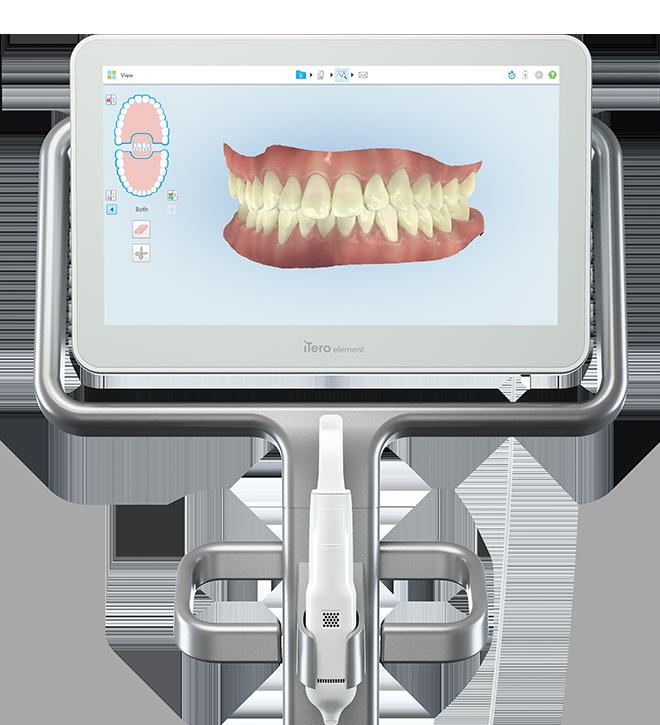 Marysville Orthodontics has the state-of-the-art iTero element 2 digital scanner
