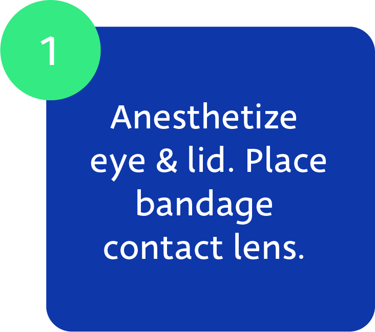 Maskin Meibomian Gland Probing Protocol, Step 1: Anesthetize eye and lid. Place bandage contact lens.