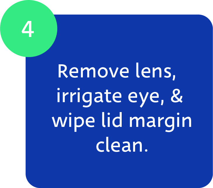 Maskin Meibomian Gland Probing Protocol, Step 4: Remove lens, irrigate eye, and wipe lid margin clean.