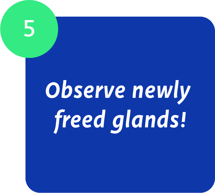 Maskin Meibomian Gland Probing Protocol, Step 5: Observe newly freed Meibomian Glands! Continue through each lid to completely probe all glands and confirm with positive physical proof ability for gland duct to allow free flow of meibum.