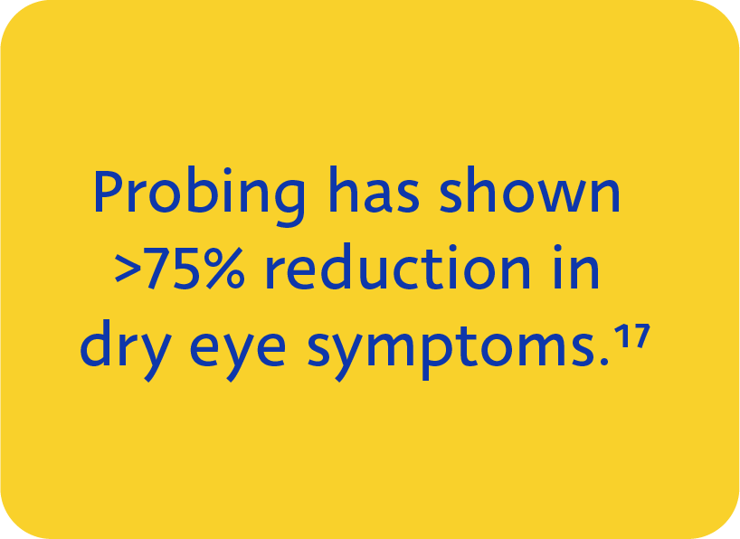 Meibomian Gland Probing has shown >75% reduction in dry eye symptoms when performed using the Maskin Probing Protocol for MGD.