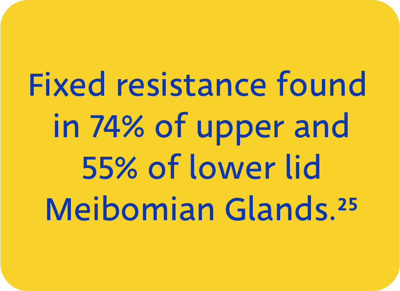 Fixed, firm, focal, unyielding, resistance (FFFUR) found in 74% of upper lid and 55% of lower lid Meibomian Glands when probed using the Maskin MG Probing Protocol.