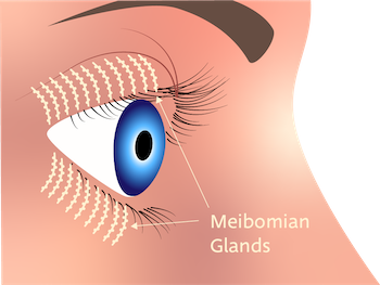 Meibomian glands express meibum at the orifice of the eyelid, called the lid margin. There are 20-30 Meibomian glands in each of the upper and lower lids, and gland extend along the length of the lid with acini (oil-producing ductules) contributing meibum that flows along the tract and onto the eye surface with blinking. Sufficient meibum is required for adequate continual lubrication of eyes, coating the aqueous tear film to prevent rapid evaporation.