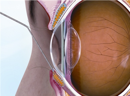 In the Maskin Probing Protocol, an eye doctor uses a small probe to enter the Meibomian Gland duct. By entering the duct with the shortest and stiffest probe first, your doctor can penetrate strictures on the surface of the duct and within the first millimeter of the gland. These strictures are created by periductal fibroses, or scar tissue, around the gland, which squeeze the duct and alter the needed channel through which oil flows. Without the proper flow of oil to the eye, the gland becomes progressively blocked, and the patient can feel increasing inflammation, tenderness in the lid, and additional symptoms associated with MGD and dry eye.