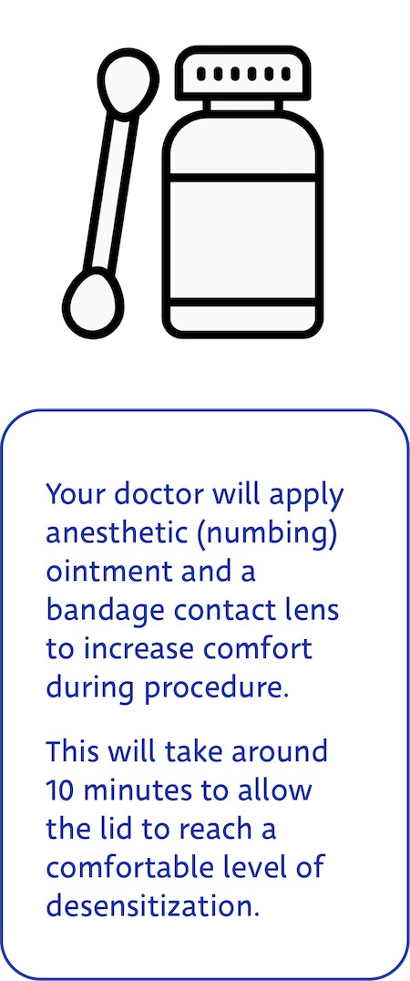 Maskin Meibomian Gland Probing Step 1: Apply anesthetic ointment and bandage contact lens for increased patient comfort.