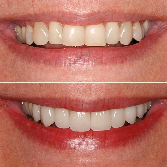 No FaceApp was needed to reverse this aging Smile... . . It was done by the expert dentistry of @cchodds. With careful planning, communication and execution, we delivered 8 All Ceramic restorations to give her patient a natural, youthful smile full of confidence and vitality. . . Dr Claire Cho is an accomplished Cosmetic Dentist who serves patients in Southern California and those that travel across the country to experience her next level dentistry.  We are very proud to be her lab partner for over 10 years! . . Thank you Dr Cho for your trust and confidence in Frontier Dental Lab🙏🏼