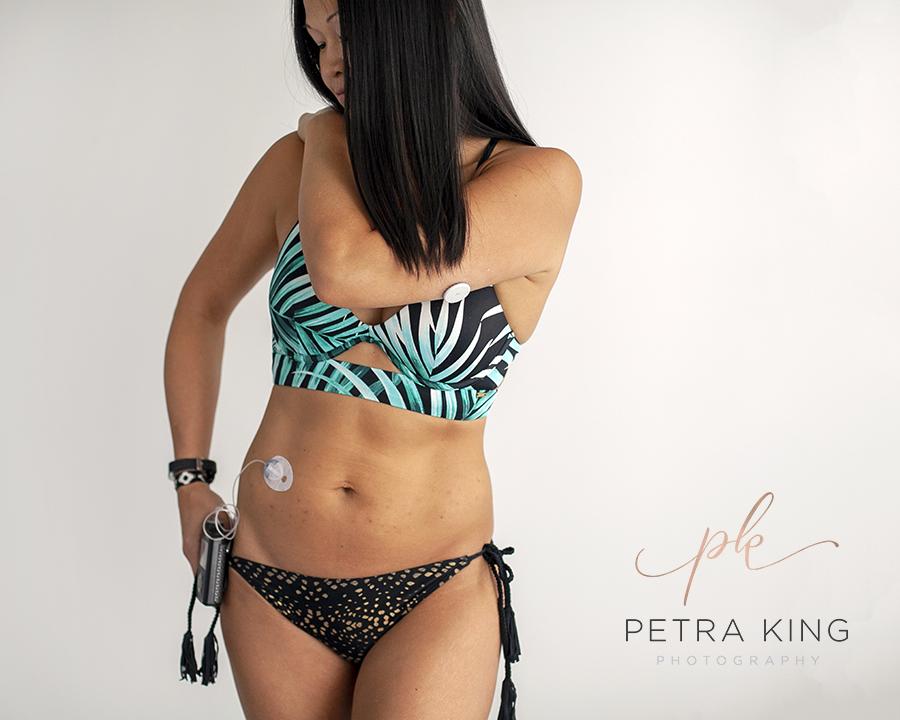 Type_1_Diabetes_Portrait_Photographer_Petra_King_Photography