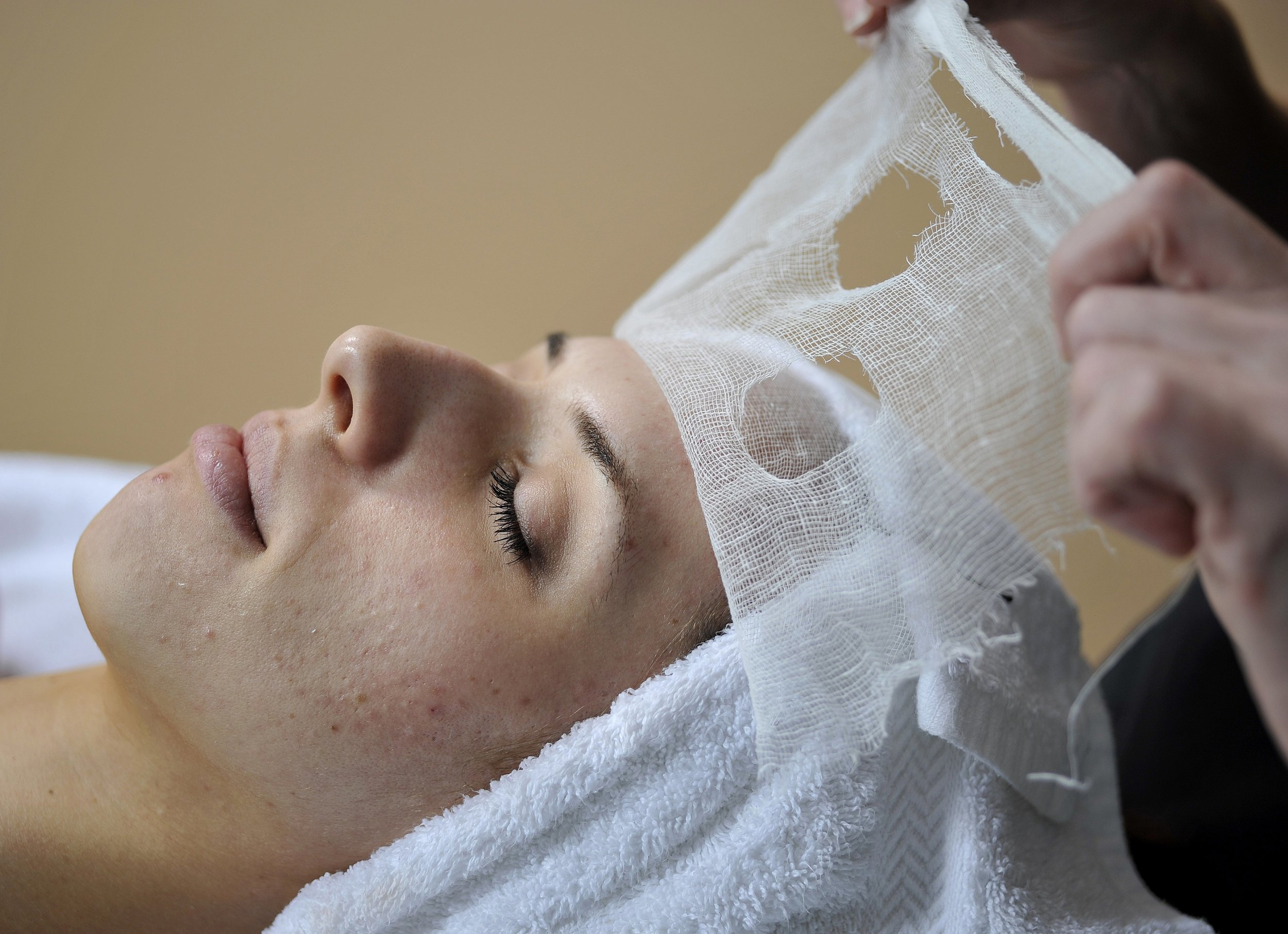 acne 4.jpg