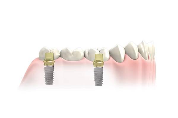 Dental Implant Bridges at NYC Center for Dental Implants