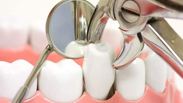 tooth-extractions-770x434.jpg