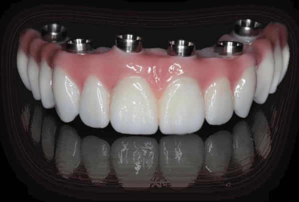 teeth-tomorrow-teeth.png