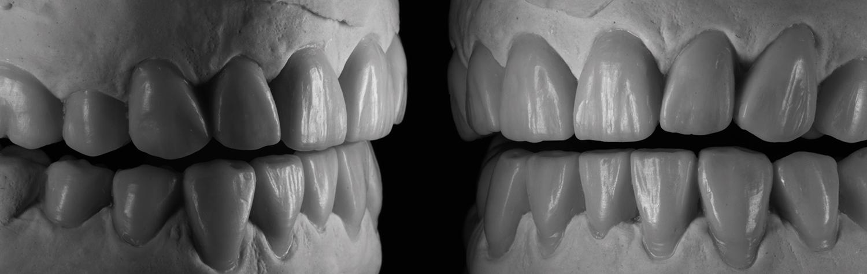 prosthodontics -