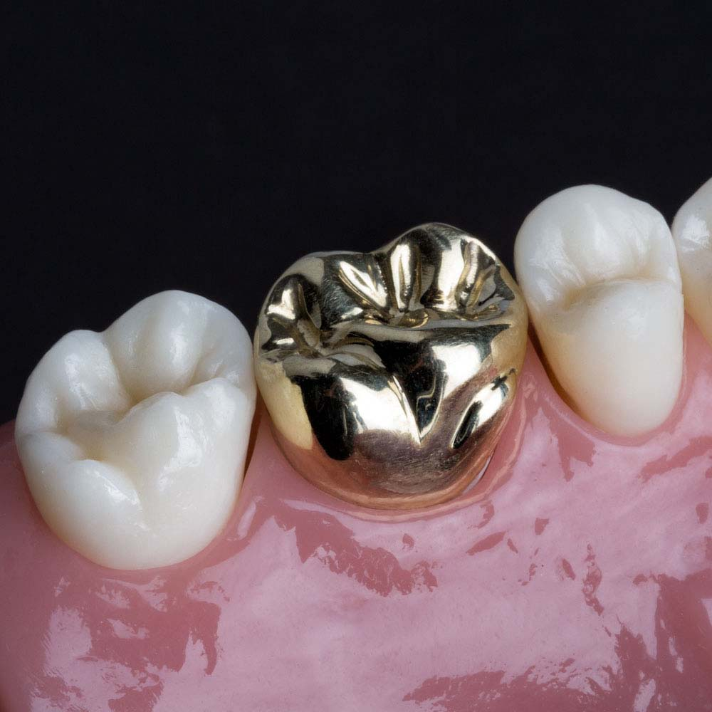 Full Cast Gold - The ultimate in strength and durability, gold restorations have been used in dentistry for decades with continued success. Typically indicated for instances of excessive force, high impact strength, gold can withstand the parfunctional forces of clenching and grinding. An alloy customarily comprised of predominantly gold and lesser amounts of platinum and paladium.
