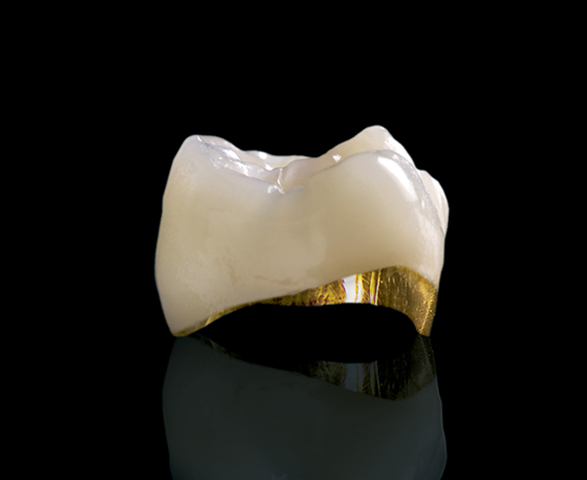 """Porcelain fused to metal - PFM crowns are relatively esthetic restorations that have been in use for more than 40 years. They combine the best of both worlds, a crown made of """"precious or noble"""" metal (gold or platinum), which is strong, fits precisely and is bonded/cemented to the tooth."""
