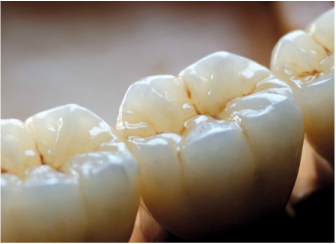 all porcelain & ceramic - Porcelain restorations offer the most aesthetically pleasing results. Dental porcelain comes in a wide selection of shades. The dentist and lab technicians will meticulously match the material to the natural color of your smile.