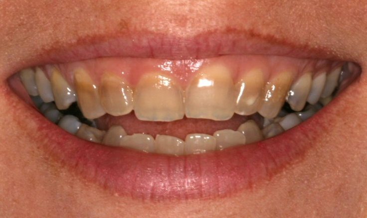 tetracycline-stains-and-cerec-veneers.jpg