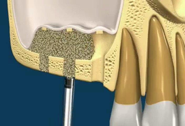 Maxillary Sinus Floor Augmentation