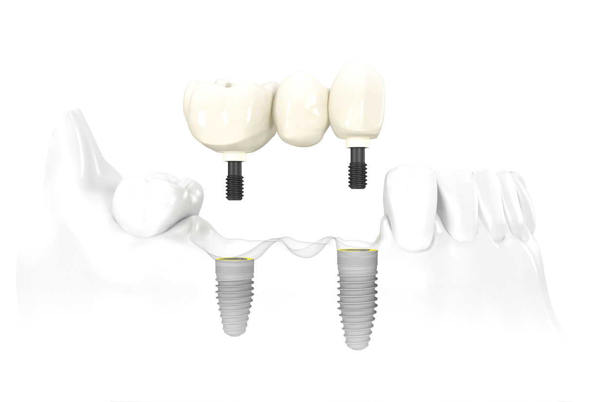 "implant supported fixed partial denture - Commonly referred to as a ""bridge"", this requires at a minimum two implants. As the edentulous span grows so should the number of implants for support. The principles to restore this design is different than that of a single crown, and several additional steps to confirm accuracy is necessary for predictable success."