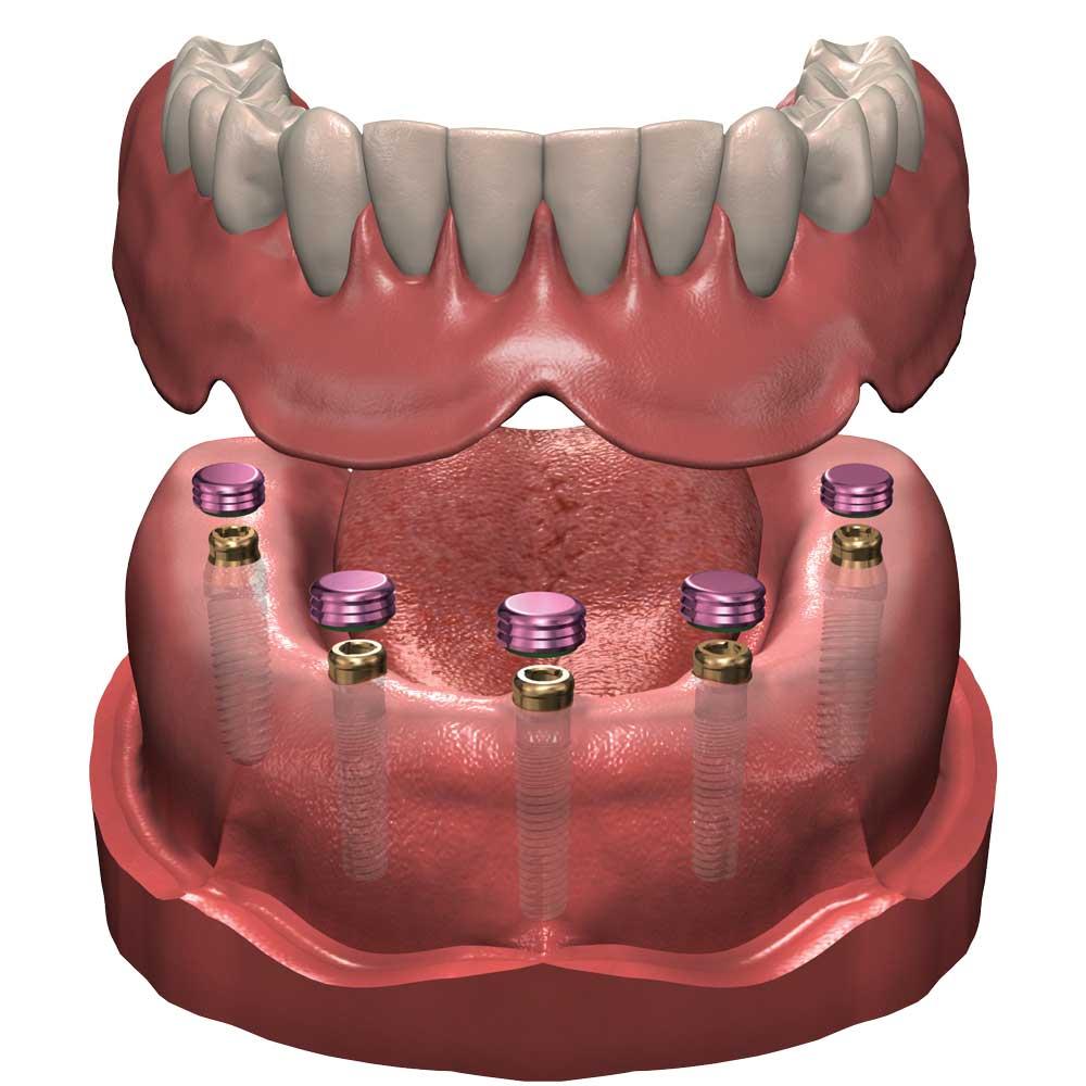 implants-multiples-1000.jpg