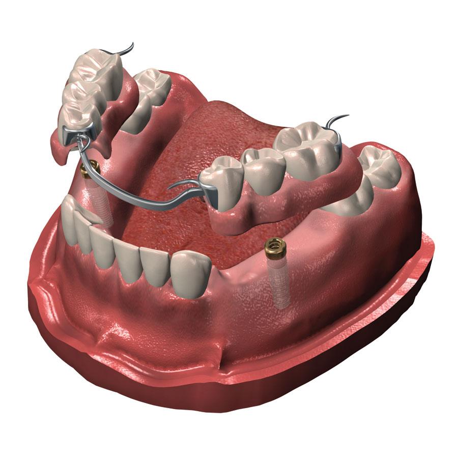 dr-morissette-implantologie-prothese-partielle-stabilisee-2-implants.jpg