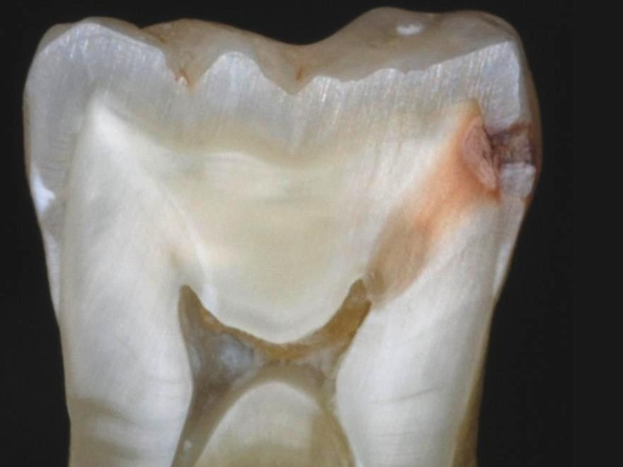 caries & tooth decay -