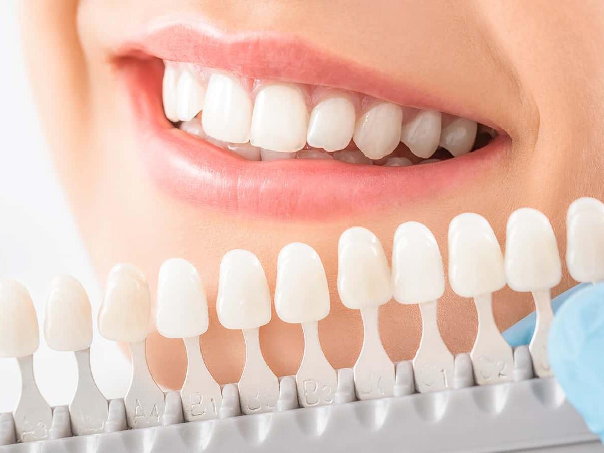 Teeth whitening -