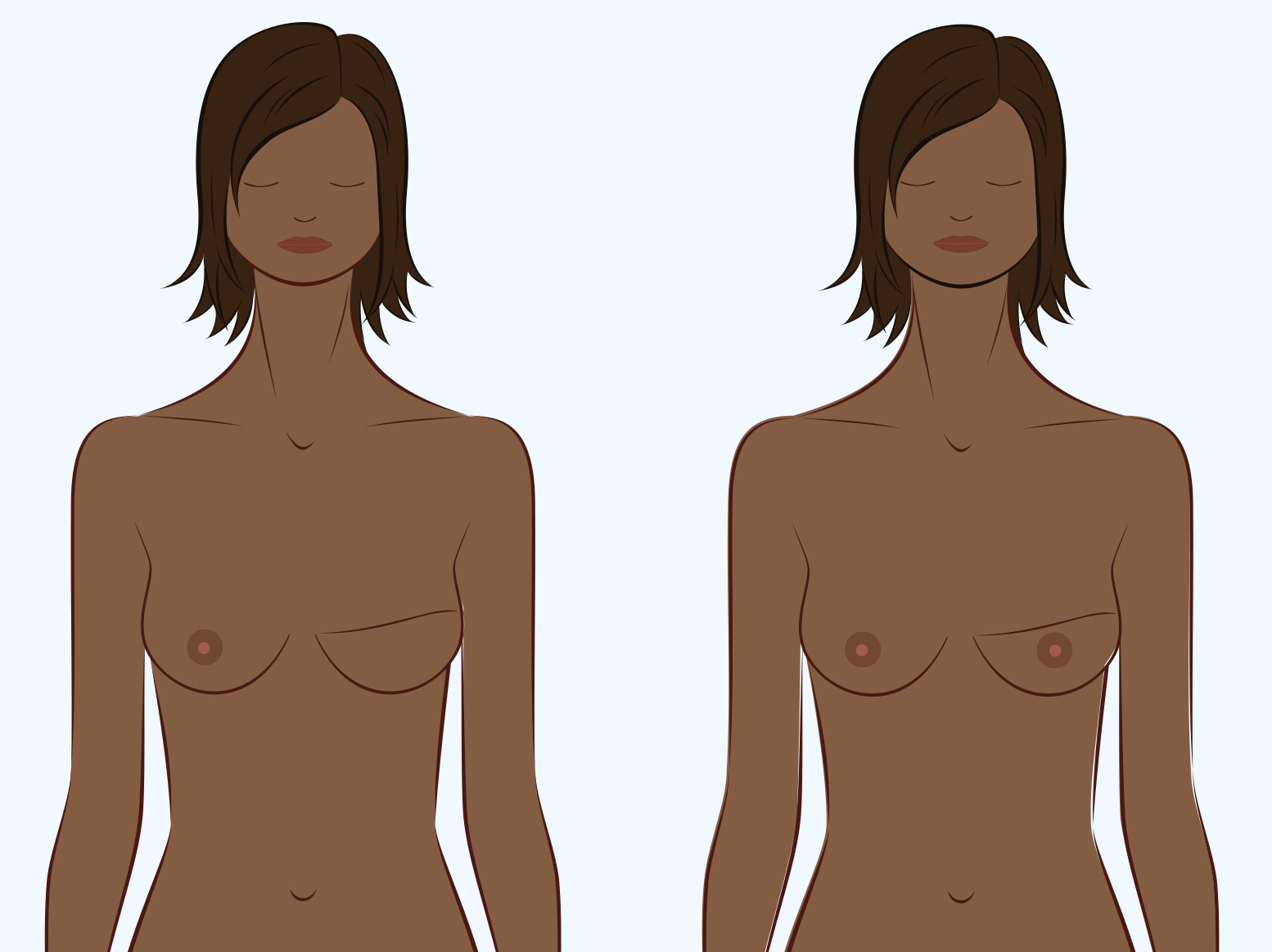 Illustration of nipple reconstruction following breast surgery.