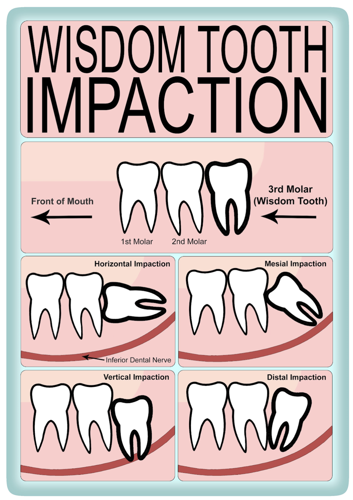 Wisdom tooth impaction, adapted from British Association of Oral & Maxillofacial Surgeons
