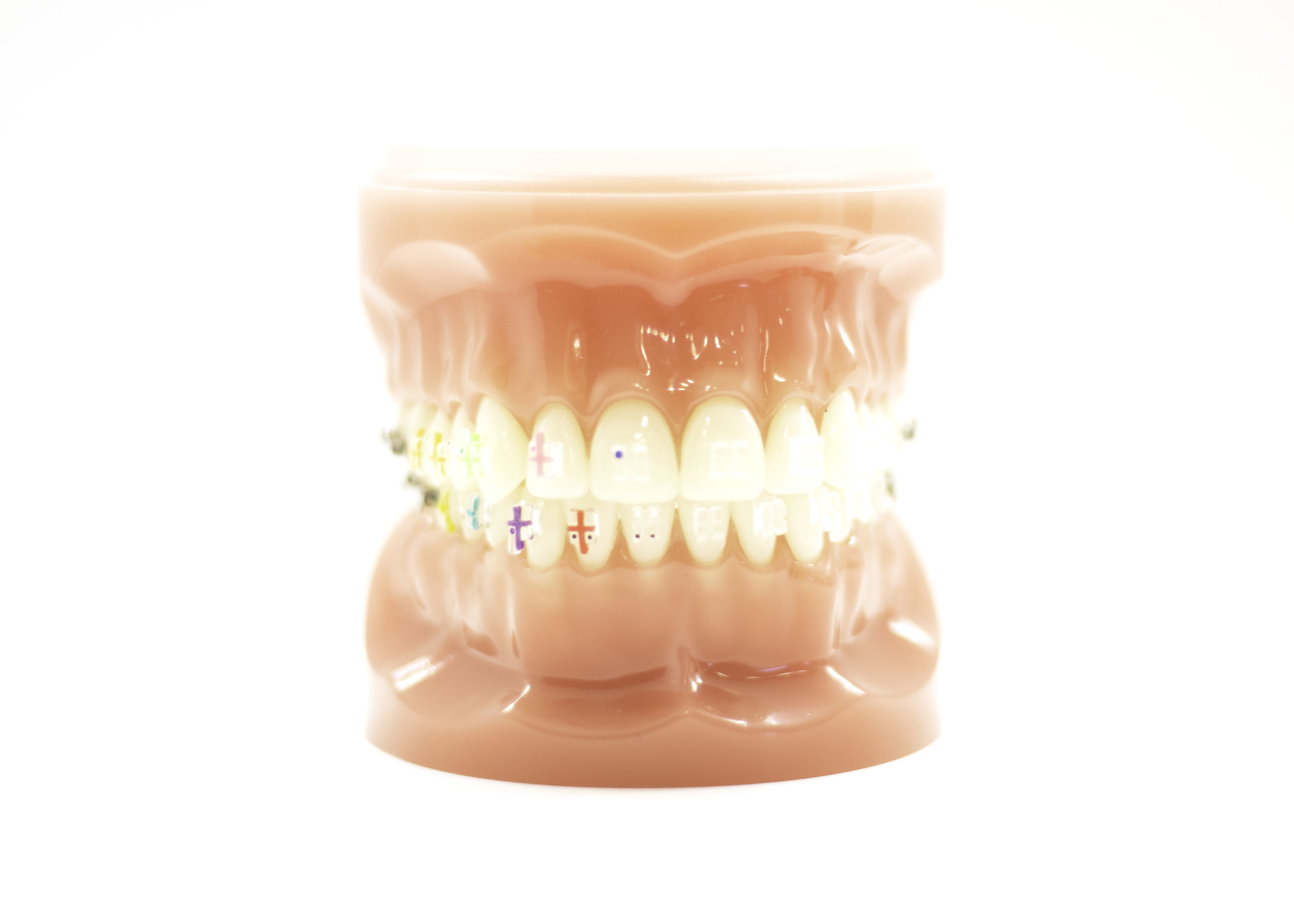 Teeth model with ceramic braces