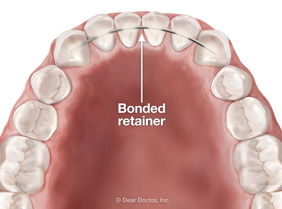 Bonded retainer, courtesy of Dear Doctor, Inc.