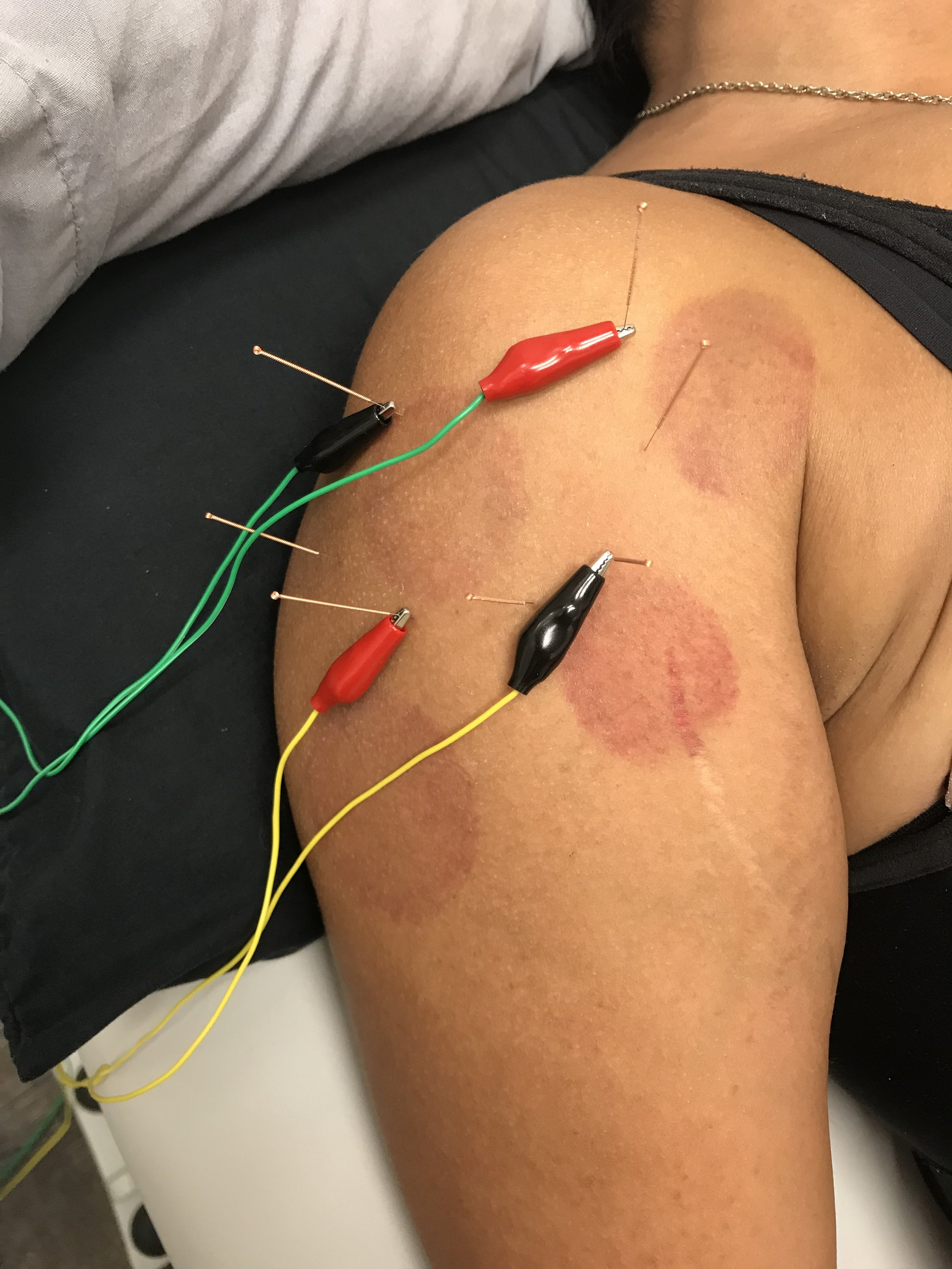 This patient received acupuncture with elecro-stimulation and bruising from cupping performed the previous day to help relieve shoulder pain