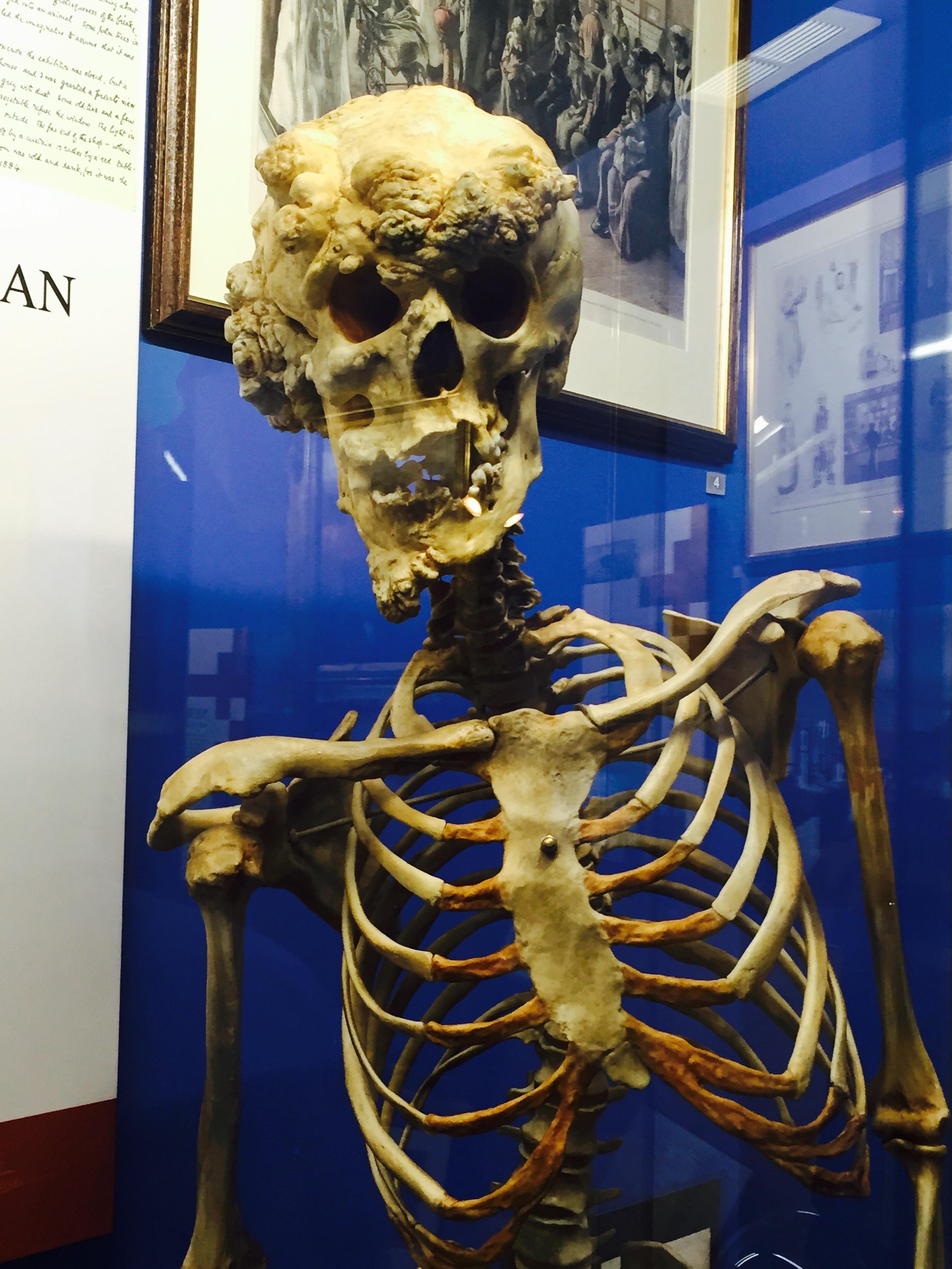Merrick's Skeleton