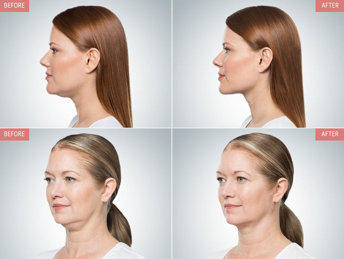 Non surgical double chin reduction Encinitas RejuvCryo