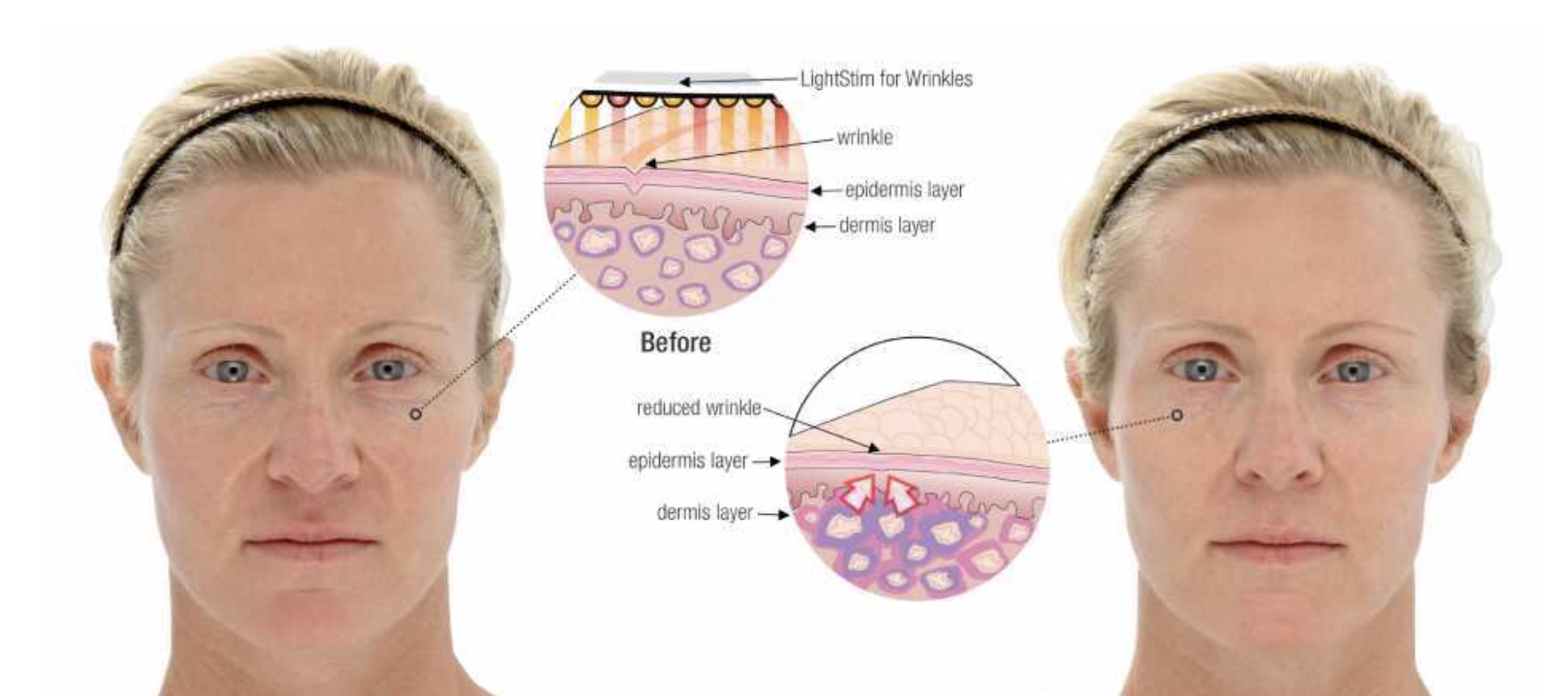 LED LightStim Facial Results RejuvCryo & Wellness.png