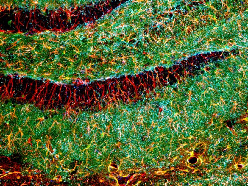 MAX__6169_WT_25x_1%2BSEZ-neuroblasts.jpg