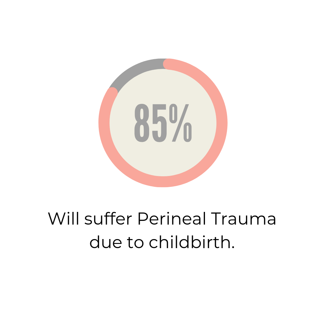 Childbirth: Perineal Trauma — Embrace Physiotherapy: Pelvic