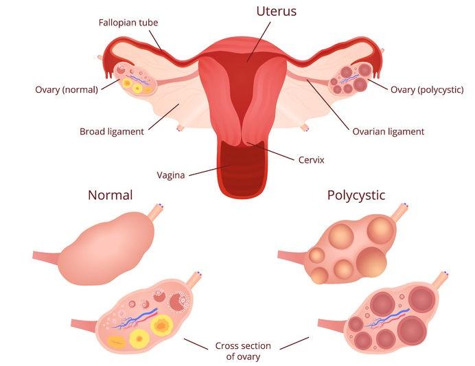 polycystic_ovary_syndrome_PCOS56801820_M.jpg