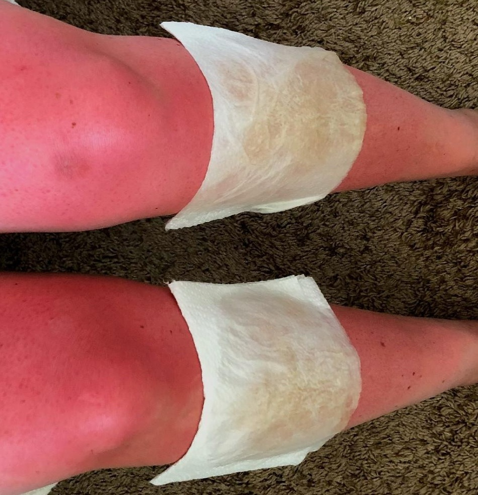 This could be oversharing but the red and swollen legs above is what happens when you float the river all day and don't reapply every 80 minutes as directed. Don't be like Sarah-use sunscreen liberally and often. If you do get burnt to a crisp apply a towel soaked in vinegar to the burn and it will draw the heat out and for the lucky ones turn it to tan.